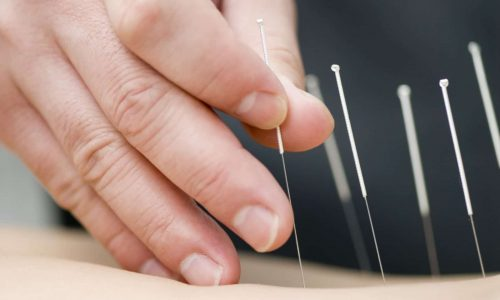 dry needling in Greenville sc